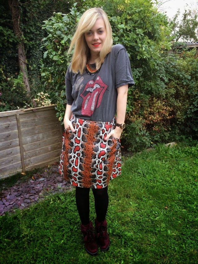 IBS: What I Wear to Beat the Bloat